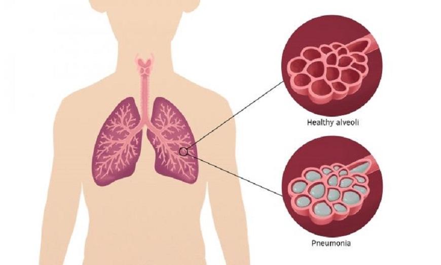 Pneumonia Causes 16% Deaths of Children Under 5