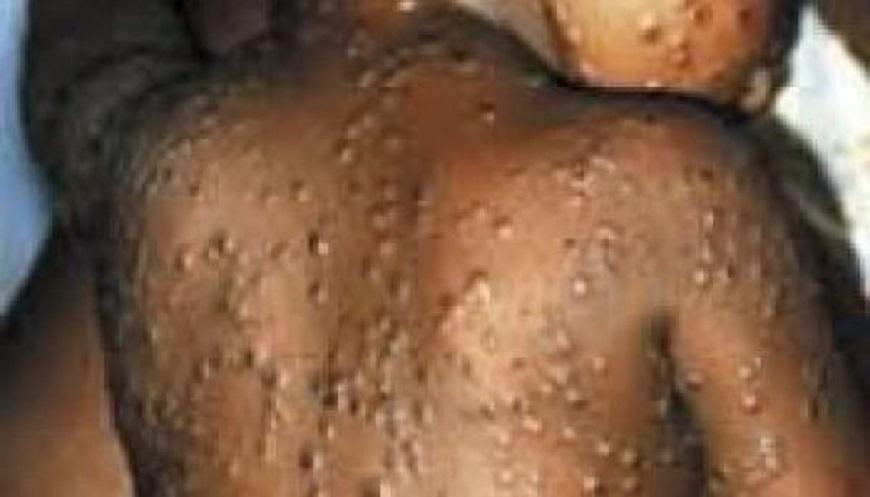 Monkey pox Livestock makets